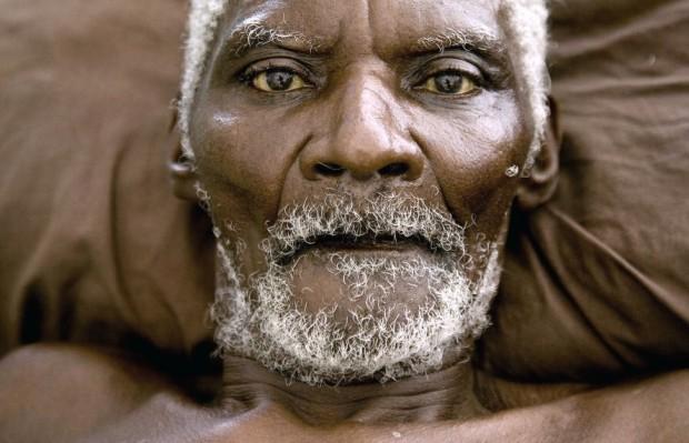 Haitian Man Recovers in Jacmel Hospital