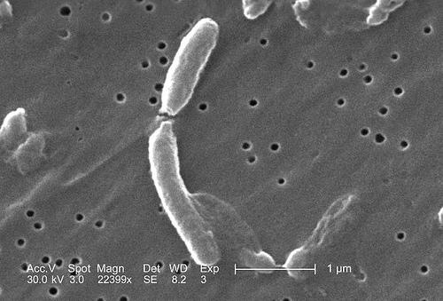VibrioCholerae